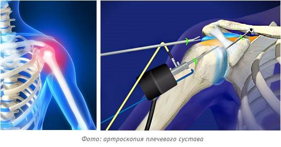 артроскопия плечевого сустава где делают